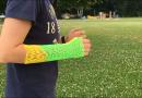 PlayCast: la stampa 3D incontra la medicina